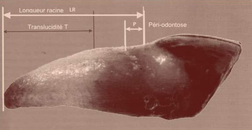Identification de cadavre : Méthode de Lamendin